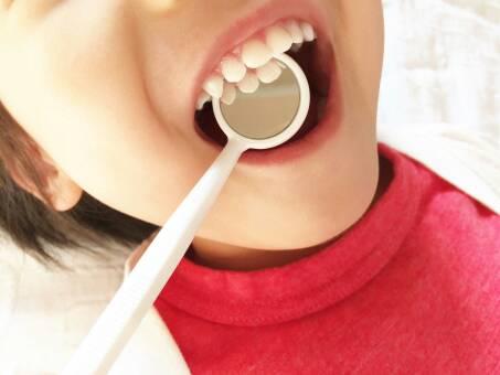 土浦の歯医者 小杉歯科医院の小児歯科